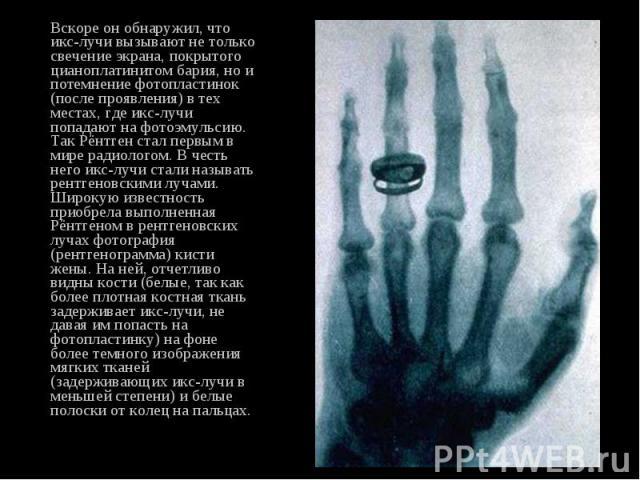 Вскоре он обнаружил, что икс-лучи вызывают не только свечение экрана, покрытого цианоплатинитом бария, но и потемнение фотопластинок (после проявления) в тех местах, где икс-лучи попадают на фотоэмульсию. Так Рёнтген стал первым в мире радиологом. В…