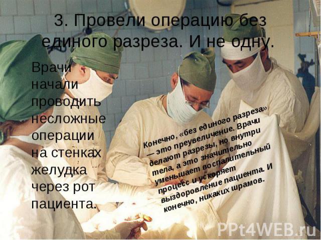 3. Провели операцию без единого разреза. И не одну. Врачи начали проводить несложные операции на стенках желудка через рот пациента.