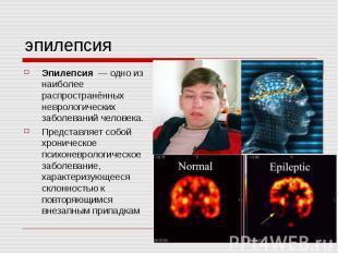 эпилепсия Эпилепсия — одно из наиболее распространённых неврологических заболева