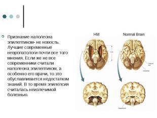 Признание наполеона эпилептиком- не новость. Лучшие современные невропатологи по