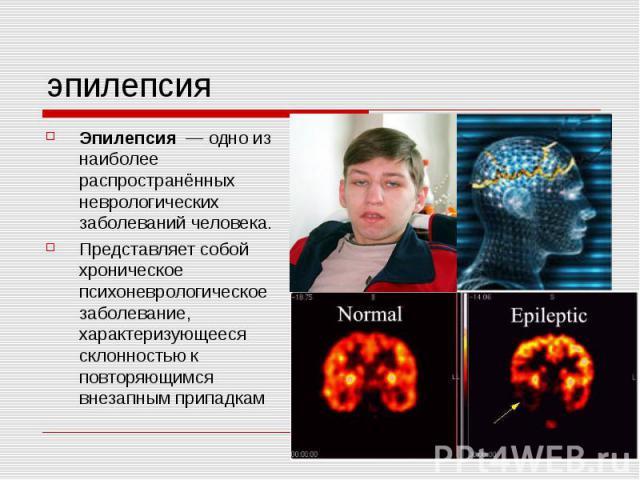 эпилепсия Эпилепсия — одно из наиболее распространённых неврологических заболеваний человека. Представляет собой хроническое психоневрологическое заболевание, характеризующееся склонностью к повторяющимся внезапным припадкам