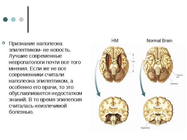 Признание наполеона эпилептиком- не новость. Лучшие современные невропатологи почти все того мнения. Если же не все современники считали наполеона эпилептиком, а особенно его врачи, то это обуславливается недостатком знаний. В то время эпилепсия счи…