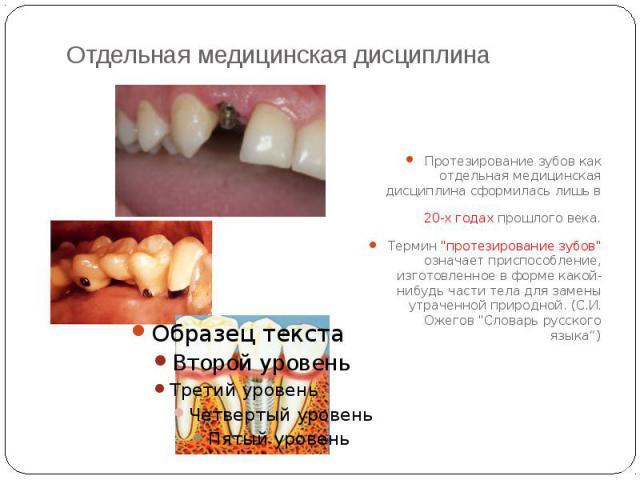 """Отдельная медицинская дисциплина Протезирование зубов как отдельная медицинская дисциплина сформилась лишь в 20-х годах прошлого века. Термин """"протезирование зубов"""" означает приспособление, изготовленное в форме какой-нибудь части тела для…"""