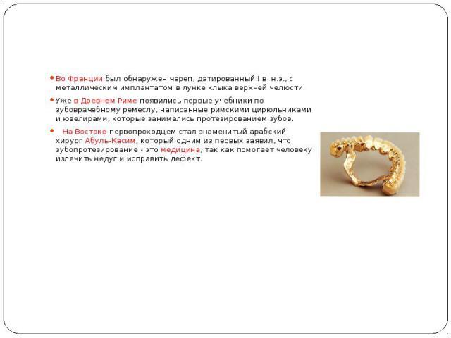 Во Франции был обнаружен череп, датированный I в. н.э., с металлическим имплантатом в лунке клыка верхней челюсти. Уже в Древнем Риме появились первые учебники по зубоврачебному ремеслу, написанные римскими цирюльниками и ювелирами, которые занимали…