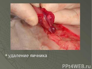 удаление яичника удаление яичника