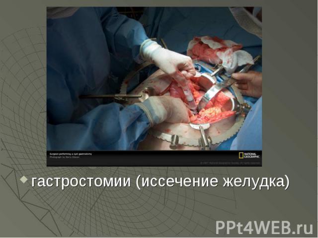 гастростомии (иссечение желудка) гастростомии (иссечение желудка)