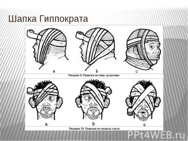 Шапка Гиппократа
