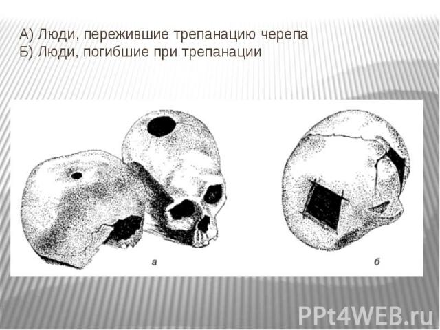 А) Люди, пережившие трепанацию черепа Б) Люди, погибшие при трепанации