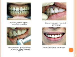 Общий вид передней группы зубов до реставрации Общий вид передней группы зубов д