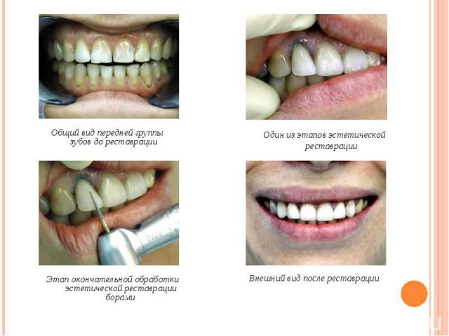 Общий вид передней группы зубов до реставрации Общий вид передней группы зубов до реставрации