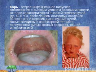 Корь - острое инфекционное вирусное заболевание с высоким уровнем восприимчивост