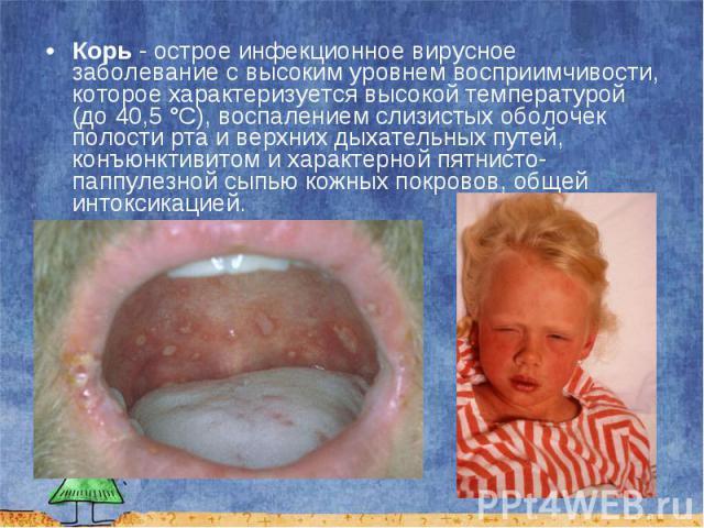 Корь - острое инфекционное вирусное заболевание с высоким уровнем восприимчивости, которое характеризуется высокой температурой (до 40,5°C), воспалением слизистых оболочек полости рта и верхних дыхательных путей, конъюнктивитом и характерной п…