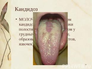 МОЛОЧНИЦА, одна из форм кандидоза слизистой оболочки полости рта, главным образо