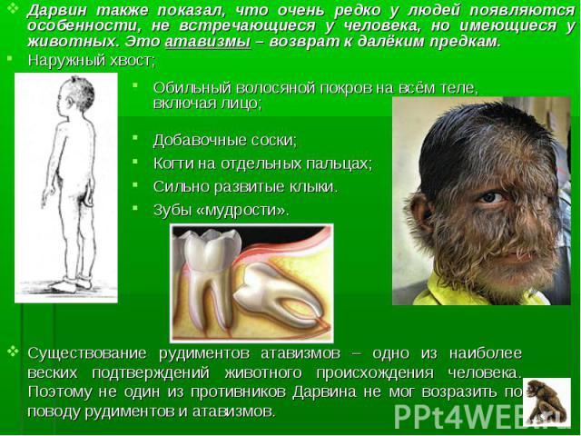 Дарвин также показал, что очень редко у людей появляются особенности, не встречающиеся у человека, но имеющиеся у животных. Это атавизмы – возврат к далёким предкам. Дарвин также показал, что очень редко у людей появляются особенности, не встречающи…