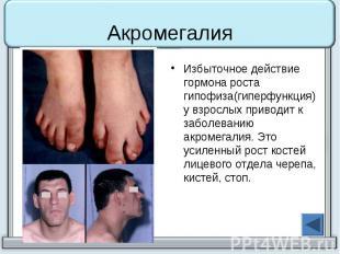 Акромегалия Избыточное действие гормона роста гипофиза(гиперфункция) у взрослых