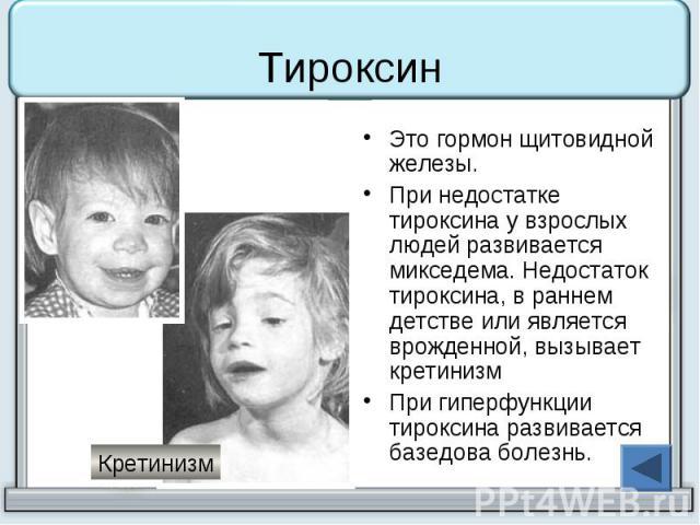 Тироксин Это гормон щитовидной железы. При недостатке тироксина у взрослых людей развивается микседема. Недостаток тироксина, в раннем детстве или является врожденной, вызывает кретинизм При гиперфункции тироксина развивается базедова болезнь.