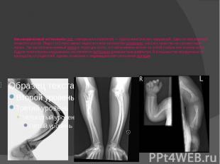 Несоверше нный остеогене з (лат.osteogenesis imperfecta)— группа ген