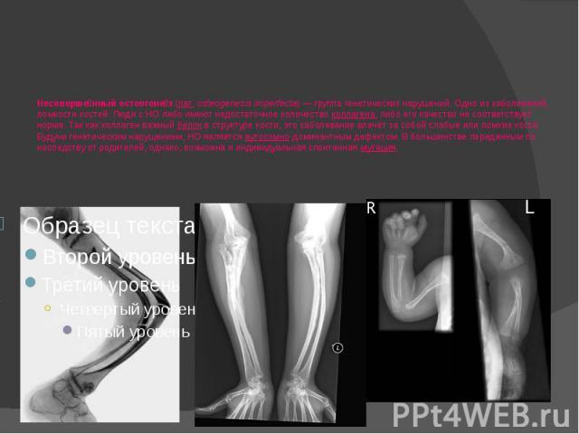 Несоверше нный остеогене з (лат.osteogenesis imperfecta)— группа генетических нарушений. Одно из заболеваний ломкости костей. Люди с НО либо имеют недостаточное количество коллагена, либо его качество не соответствует норме. Так как колл…