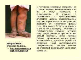 Элефантиазис - cлоновая болезнь. Элефантиазис - cлоновая болезнь. http://www.med