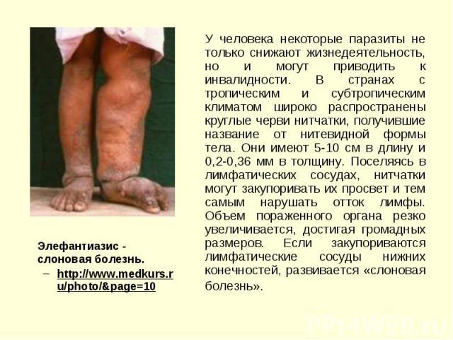 Элефантиазис - cлоновая болезнь. Элефантиазис - cлоновая болезнь. http://www.medkurs.ru/photo/&page=10