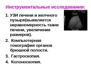 УЗИ печени и желчного пузыря(выявляется неравномерность ткани печени, увеличение