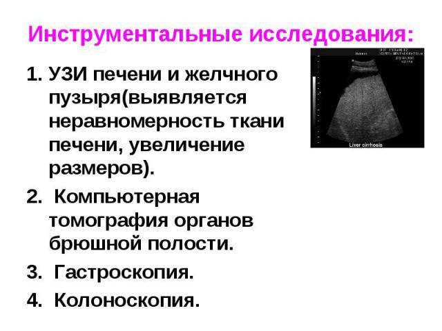 УЗИ печени и желчного пузыря(выявляется неравномерность ткани печени, увеличение размеров). УЗИ печени и желчного пузыря(выявляется неравномерность ткани печени, увеличение размеров). Компьютерная томография органов брюшной полости. Гастроскопия. Ко…