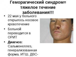 22 мая у больного открылось носовое кровотечение 22 мая у больного открылось нос
