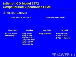 InSync® ICD Model 7272 Сохранённая и реальная EGM Электрограммы