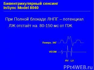 Бивентрикулярный сенсинг InSync Model 8040 При Полной блокаде ЛНПГ – потенциал Л