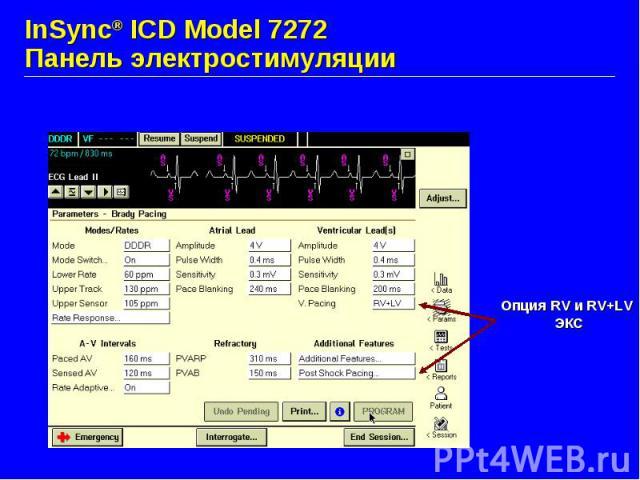 InSync® ICD Model 7272 Панель электростимуляции
