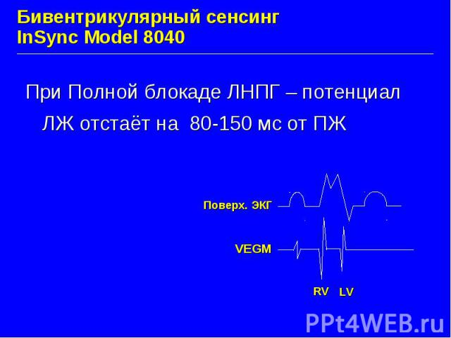 Бивентрикулярный сенсинг InSync Model 8040 При Полной блокаде ЛНПГ – потенциал ЛЖ отстаёт на 80-150 мс от ПЖ