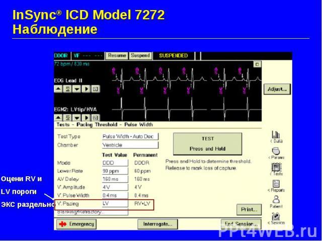 InSync® ICD Model 7272 Наблюдение
