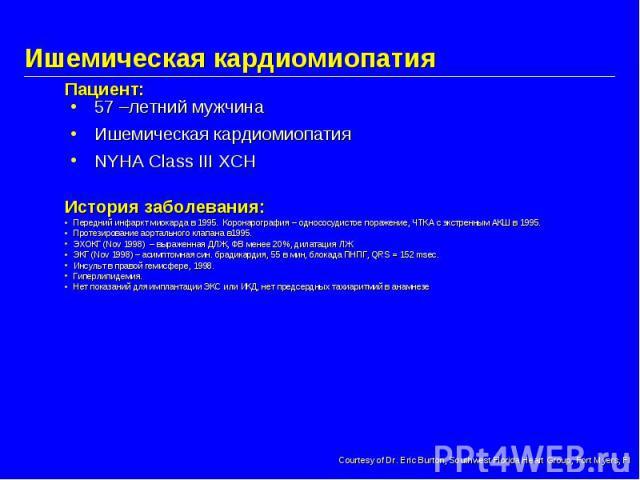 Ишемическая кардиомиопатия 57 –летний мужчина Ишемическая кардиомиопатия NYHA Class III ХСН