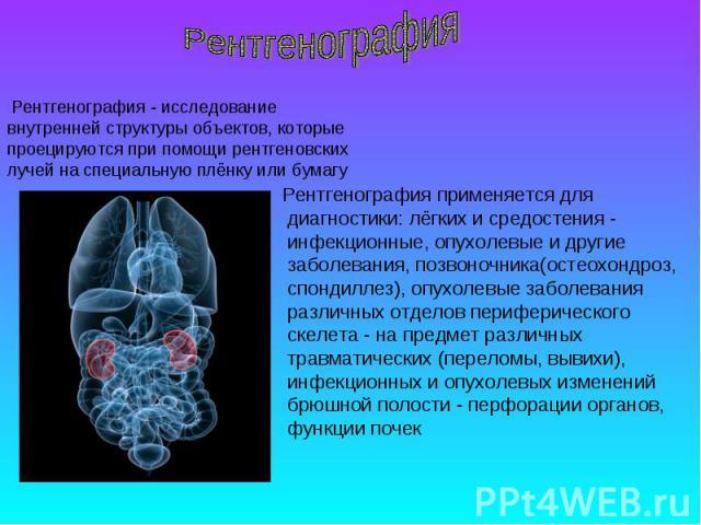 Рентгенография применяется для диагностики: лёгких и средостения - инфекционные, опухолевые и другие заболевания, позвоночника(остеохондроз, спондиллез), опухолевые заболевания различных отделов периферического скелета - на предмет различных травмат…