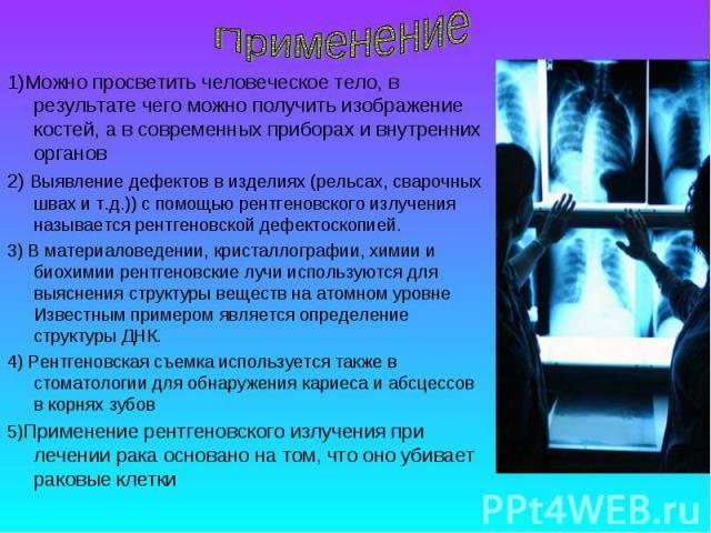 1)Можно просветить человеческое тело, в результате чего можно получить изображение костей, а в современных приборах и внутренних органов 2) Выявление дефектов в изделиях (рельсах, сварочных швах и т.д.)) с помощью рентгеновского излучения называется…