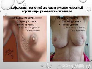 Деформация молочной железы и рисунок лимонной корочки при раке молочной железы