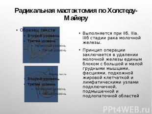 Радикальная мастэктомия по Холстеду-Майеру Выполняется при IIб, IIIа, IIIб стади
