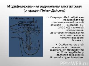 Модифицированная радикальная мастэктомия (операция Пейти-Дайсена) Операцию Пейти