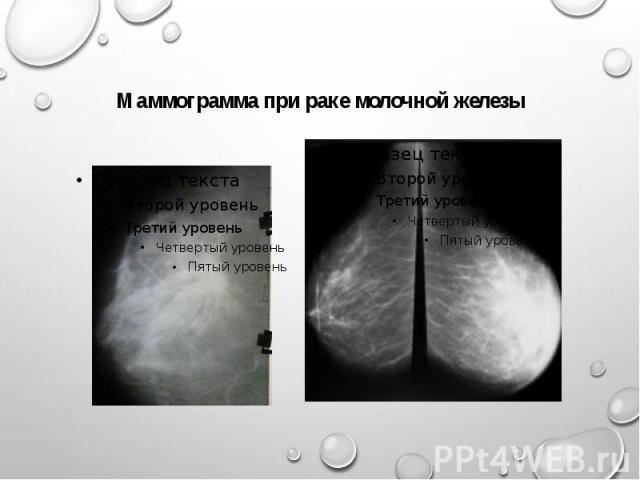 Маммограмма при раке молочной железы