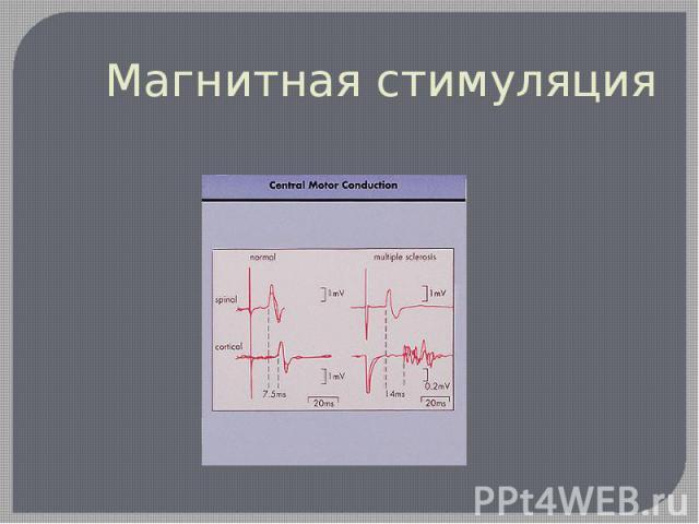 Магнитная стимуляция