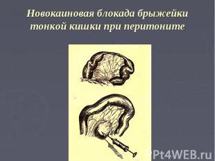 Новокаиновая блокада брыжейки тонкой кишки при перитоните