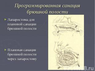 Программированная санация брюшной полости Лапаростома для плановой санации брюшн