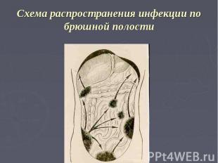 Схема распространения инфекции по брюшной полости