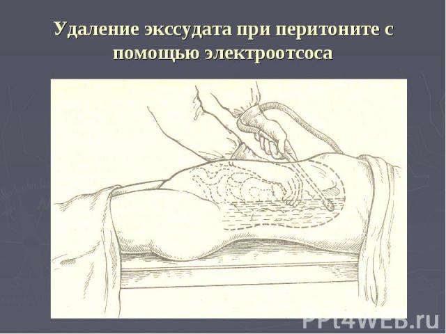 Удаление экссудата при перитоните с помощью электроотсоса