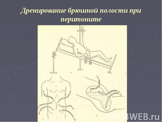 Дренирование брюшной полости при перитоните
