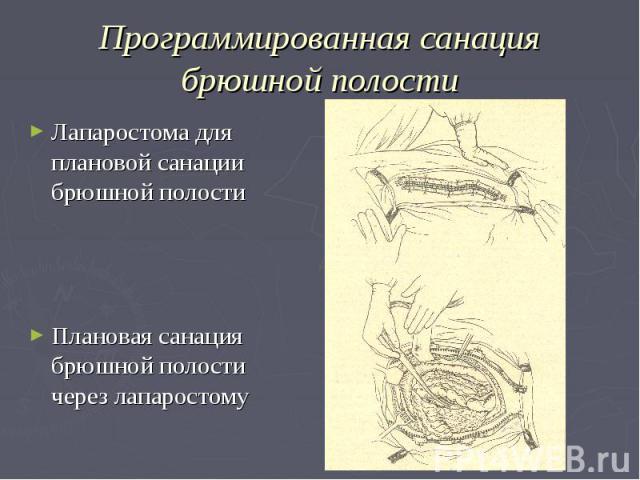 Программированная санация брюшной полости Лапаростома для плановой санации брюшной полости Плановая санация брюшной полости через лапаростому