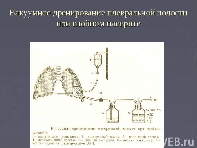 Вакуумное дренирование плевральной полости при гнойном плеврите