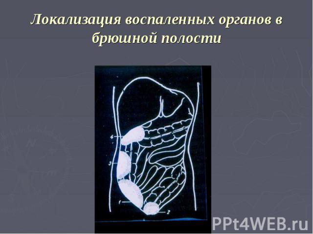 Локализация воспаленных органов в брюшной полости