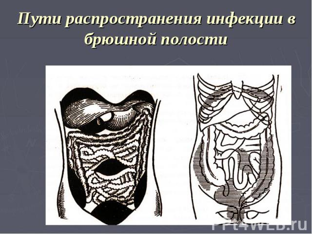 Пути распространения инфекции в брюшной полости