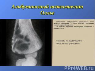 Альбуминозный остеомиелит Оллье